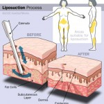 online-other_tumescent liposuction